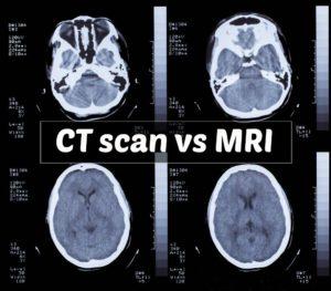 Ct scan vs MRI